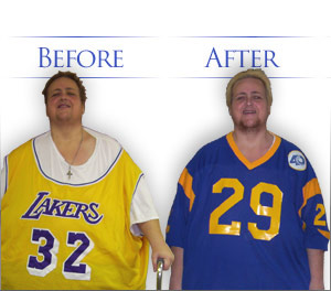 Bariatric Surgery at Our Los Angeles Area Center: Before and After Photos